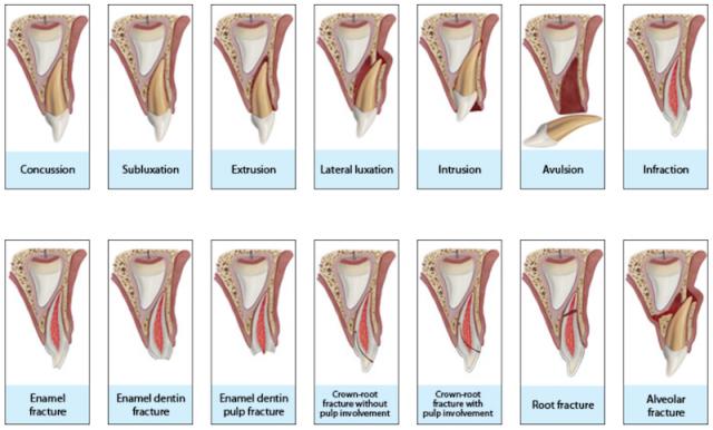 Fonte: Dental Trauma Guide