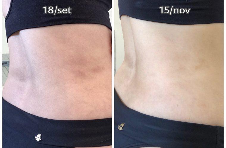 carboxiterapia antes e depois manchas na pele lipoaspiração